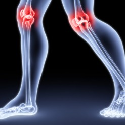 Simple Steps to Help Relieve Arthritis-Related Joint Pain